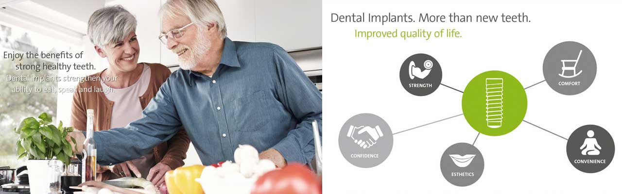 Dental Implants Slide Header