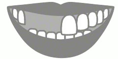Multiple Teeth Replacement Illustration