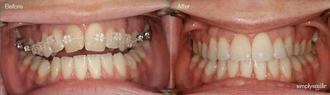 Simply Smile Orthodontic braces before and after
